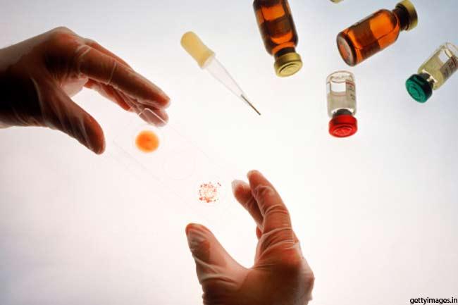 एड्स का परीक्षण