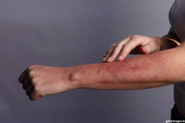 एलर्जी दूर करें