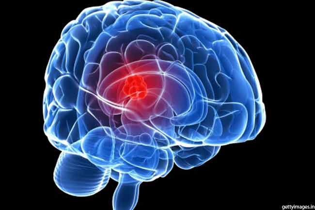 मस्तिष्क रोग में फायदेमंद