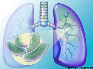 Facts on latent tuberculosis