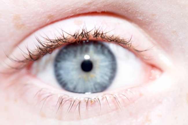 मानव आंख