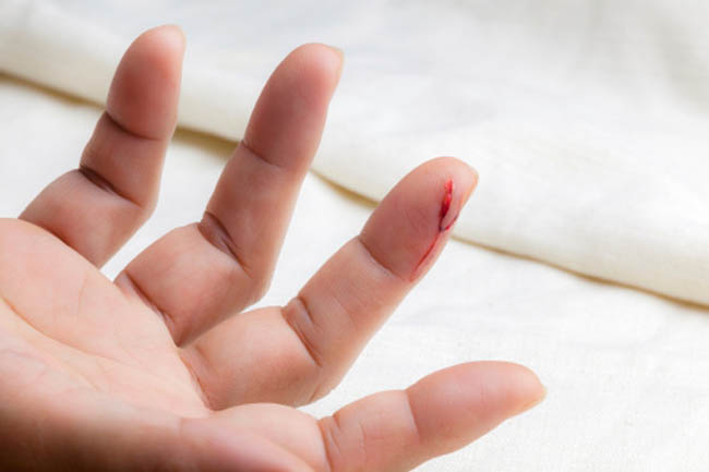Heals Wounds
