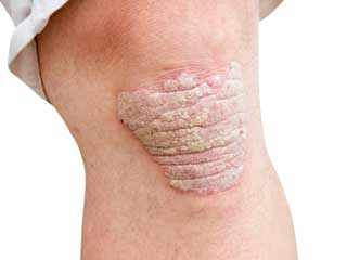 Do You Know How to Get Rid of Psoriasis Naturally? Here is How.