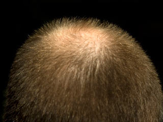 Reasons for Patchy Hair Loss in Men
