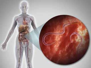 मनुष्यों में टेपवर्म के लक्षण, कारण और इलाज