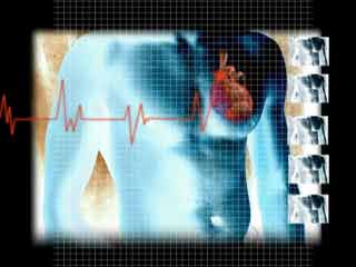 What are the risks of Nuclear Heart Scan?
