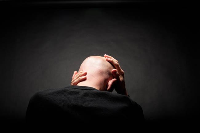 Drugs for Baldness