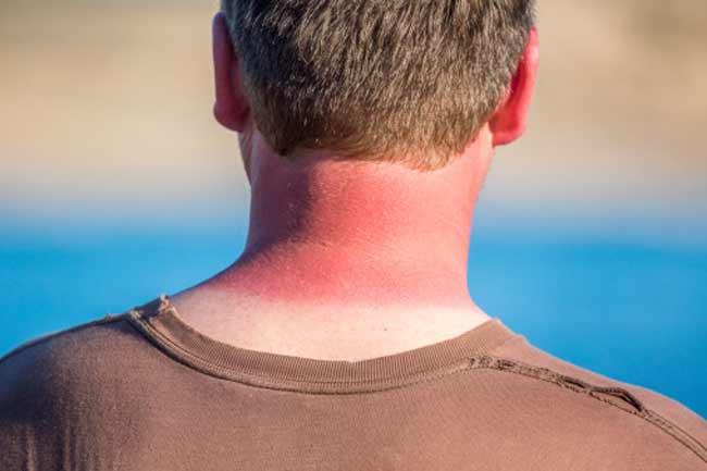 For healing sunburns