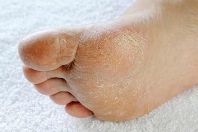 For treating cracked heels