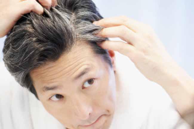 समय से पहले बालों का सफेद होना अनुवांशिक