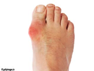 How To Treat Big Toe Arthritis