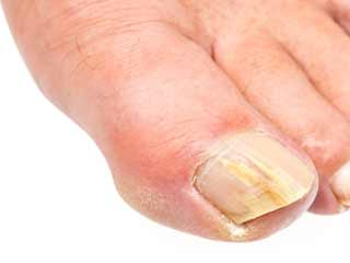 What are the Symptoms of Onycholysis
