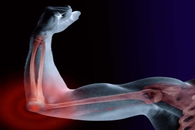 हड्डियां रखे मजबूत