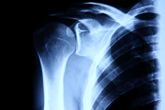 Reduces the Risk of Osteoporosis