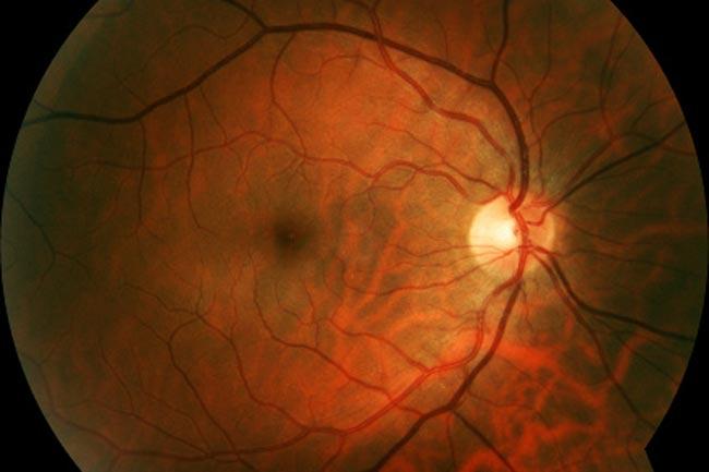 Detached Retina
