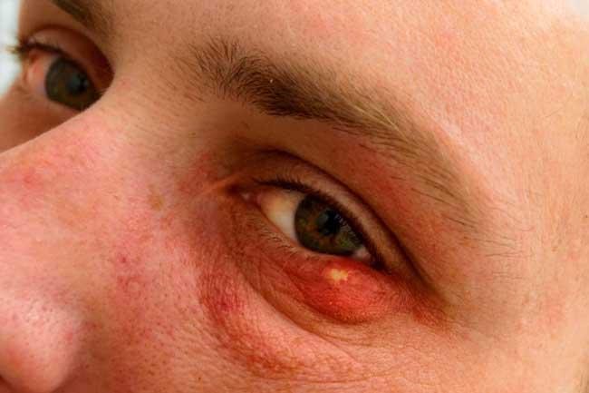 आंखों की फुंसी को सुई से दबाना