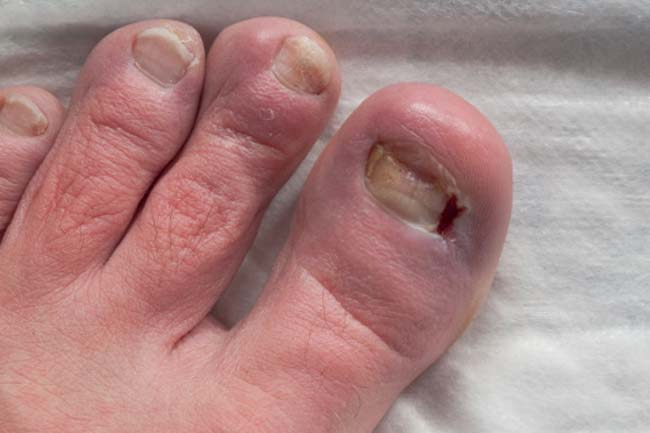 Pitted Toenails