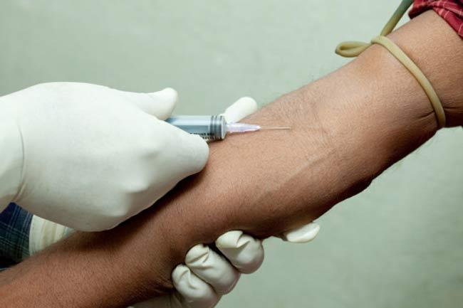 ह्यूमन इम्यूनोडिफिसिएंसी वायरस (एचआईवी)