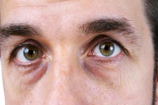 आंखों के आस-पास काले घेरे और सूजन