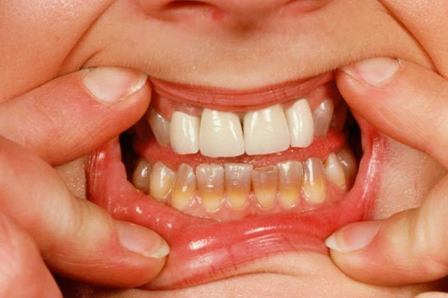 पीले दांत