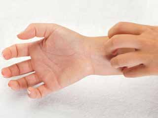 Causes for Itchy Hands and Feet, Especially at Night