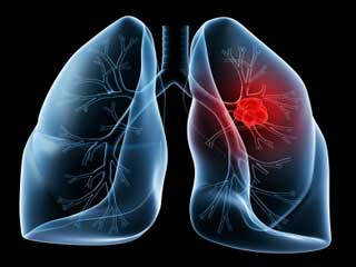फेफड़ों के कैंसर से जुड़े सात तथ्य