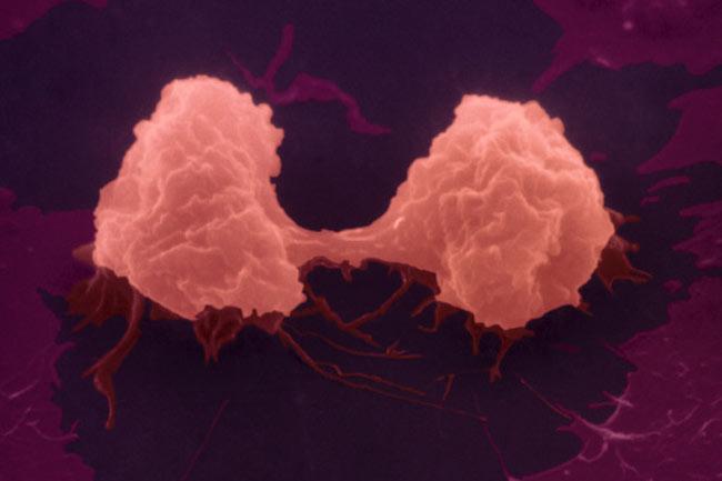 फेफड़ों के कैंसर के दो प्रकार हैं