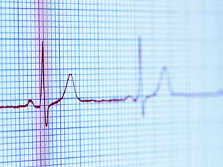 What Must One Expect After an Electrocardiogram