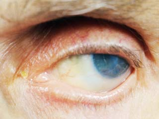 What is the expected duration of Keratitis?