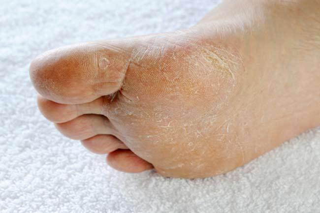 डायबिटिक फूट (Diabetic foot)
