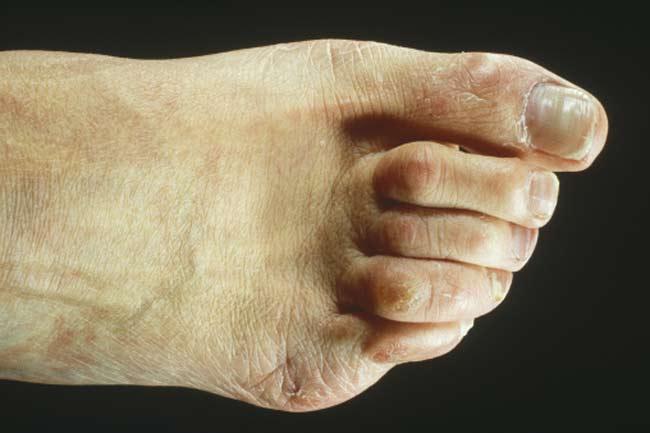 हैमर टो (Hammer toes)