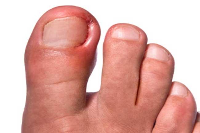अंतर्वर्धित नाखून (Ingrown nails)