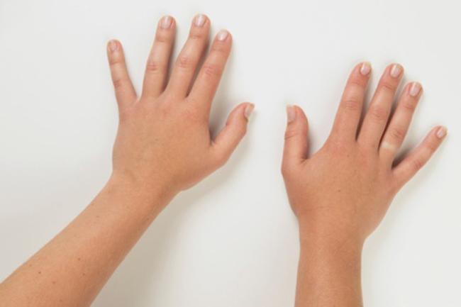 अपनी उंगलियों को मोस्चुराइज करें