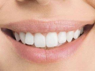 दस चीजें जो छीन सकती हैं आपकी प्यारी मुस्कान