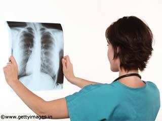 India TB Feature