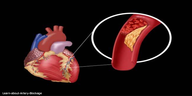 What Is Heart Artery Blockage Video Artery Blockage
