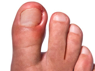 All about Chilblains