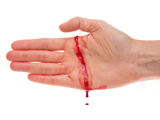 त्वचा में घाव होने पर तुंरत करें उपचार