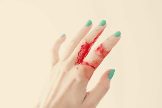 बहते खून को रोकें