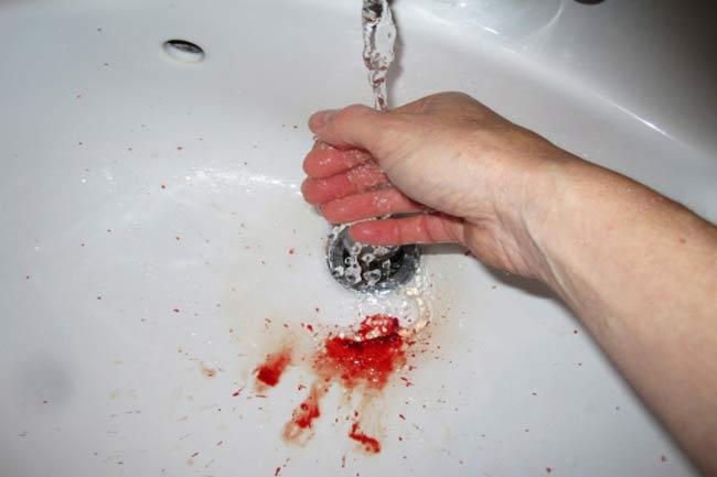घाव साफ करें