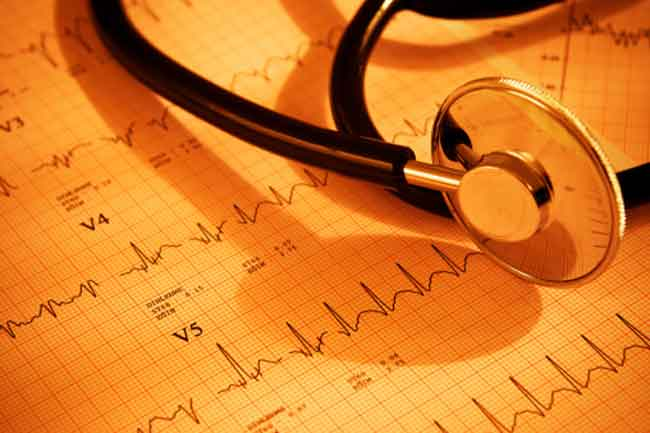 Knowing Atrial Fibrillation