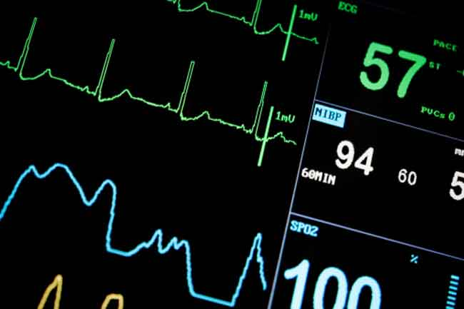 An EKG may not Detect Afib