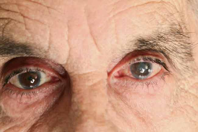 Myth 4:The Worsening of Vision with Age cannot be Stopped