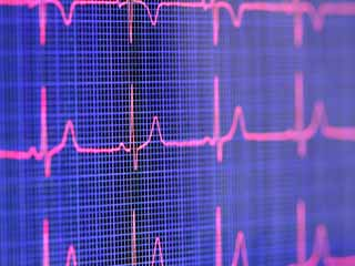 Who is at risk from Heart Palpitations?