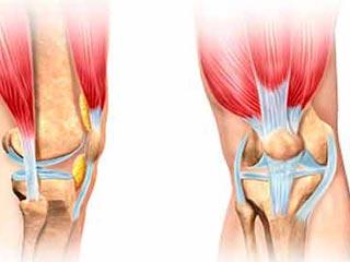 बढ़ती उम्र के साथ ही क्&zwj;यों बढ़ने लगता है घुटने में <strong>दर्द</strong>