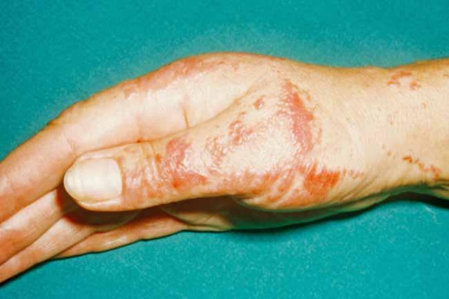 सीलिएक रोग