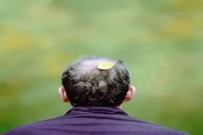 पुरुषों में बाल झड़ने की समस्या