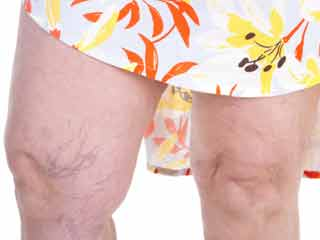 Newest Treatments for Varicose Veins
