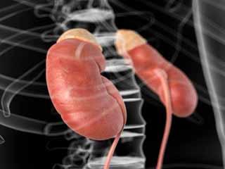 What is Congenital Adrenal Hyperplasma?