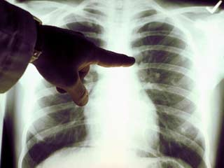 What are Malignant Pleural Effusions?